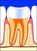 **ملف كامل عن طب الاسنان **بالصور..