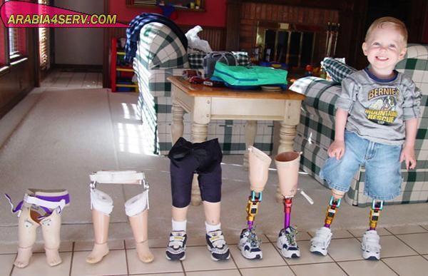 صور طفل تحدى المستحيل
