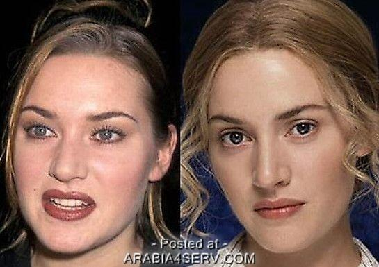 الفنانات قبل وبعد عمليات التجميل