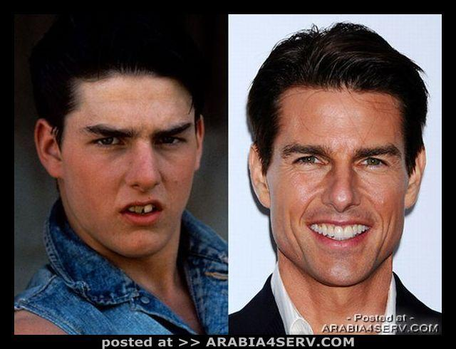 مشاهير قبل وبعد تجميل الأسنان